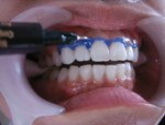 ホワイトニング前に歯ぐきをカバー