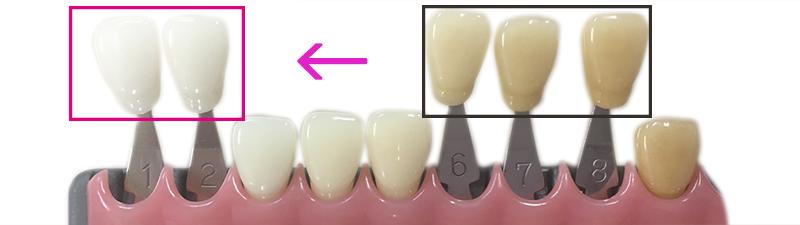 ホワイトニングで目標とする歯の色