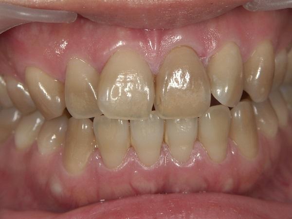 着色歯のホワイトニング前