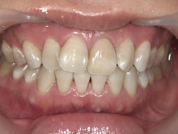 着色歯のホワイトニング後